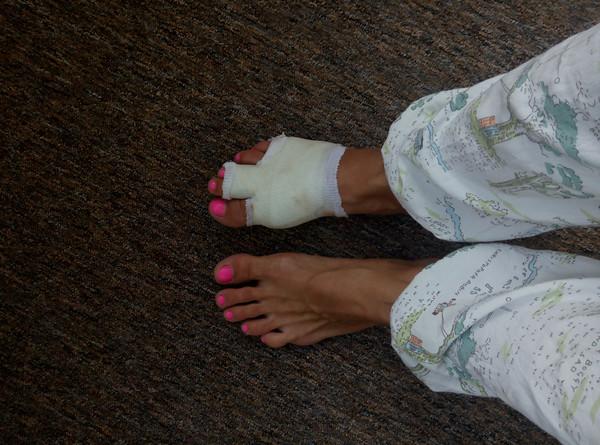 Перелом пальца на ноге у кого есть опыт?, Здоровье родителей ...