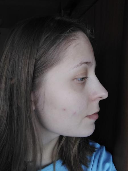 пошла аллергия на лице что делать