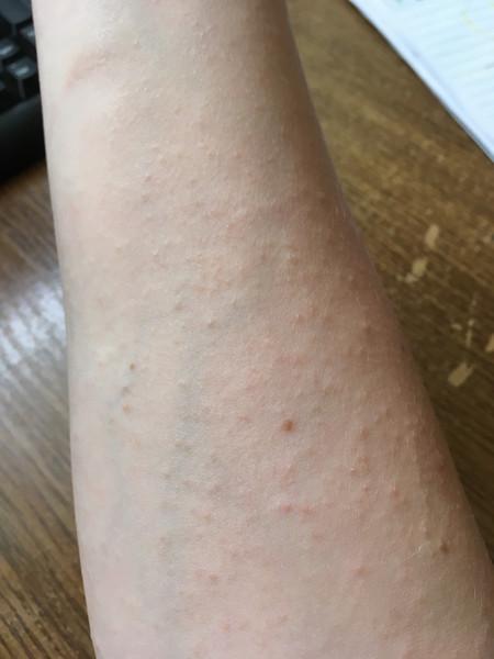аллергическая сыпь фото у взрослых